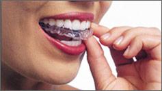Invisalign-trained dentist