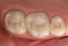 After CEREC® quadrant